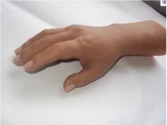 Prótesis ortopédicas